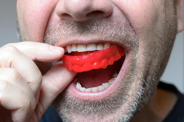 Mouthguard2